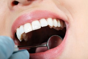Dental Extractions in Northborough, MA